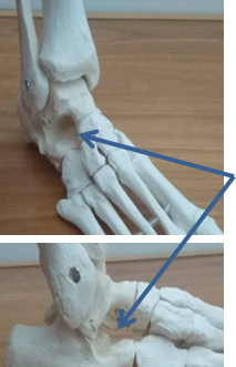 Sinus Tarsi Syndrome Fix Podiatry